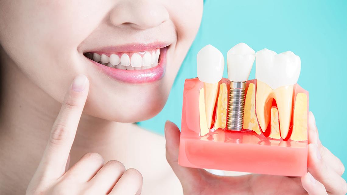 implanturile-dentare
