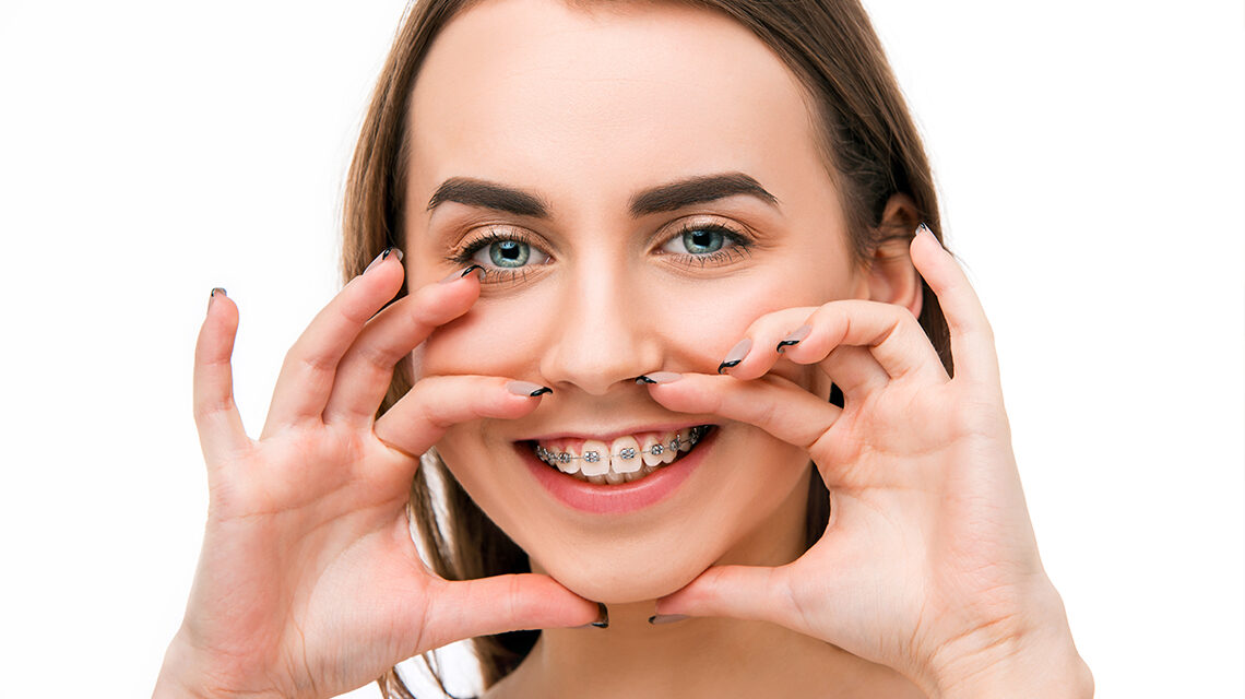 aparatul-dentar-la-adulti